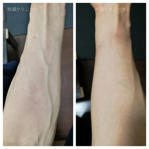 両方の手に結節性痒疹治療の30日後