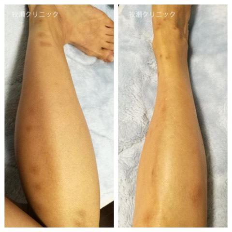 両方の足に結節性痒疹