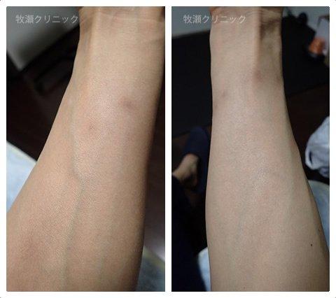 結節性痒疹治療の20日後
