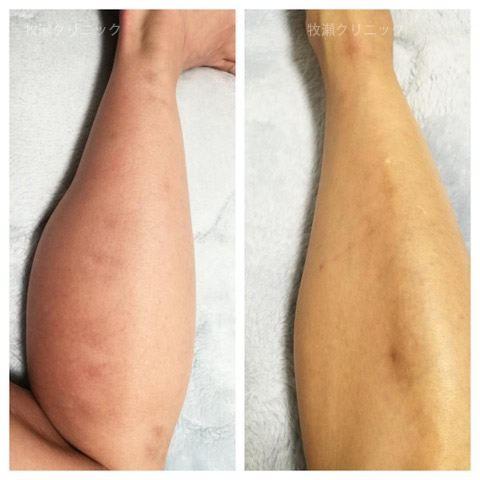 両方の足に結節性痒疹治療の30日後