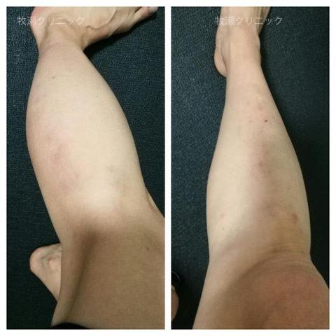 足の結節性痒疹が治癒
